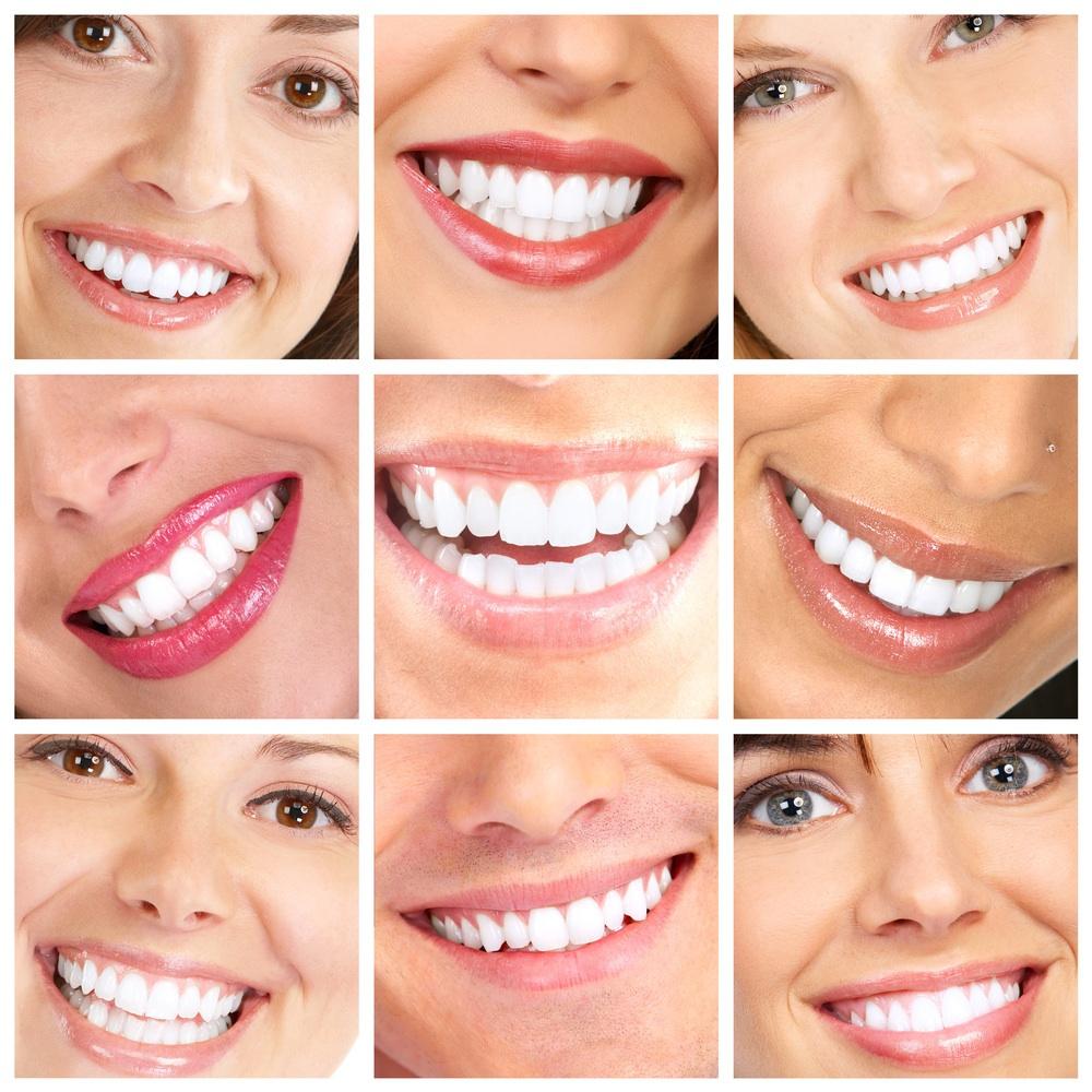 Вид улыбки с зубами